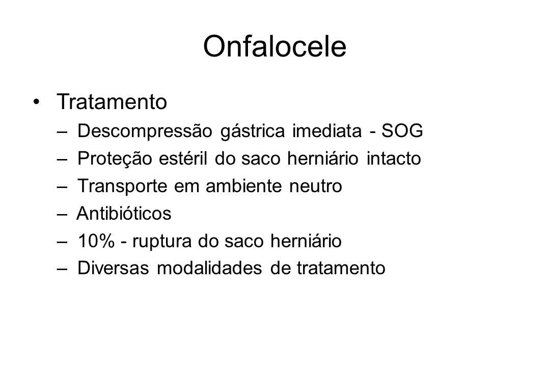 Onfalocele Tratamento Descompressão gástrica imediata - SOG