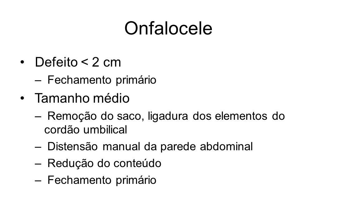 Onfalocele Defeito < 2 cm Tamanho médio Fechamento primário