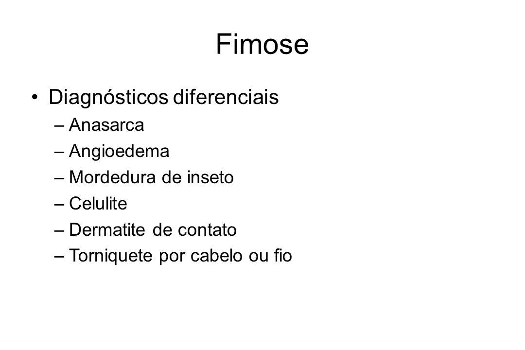 Fimose Diagnósticos diferenciais Anasarca Angioedema