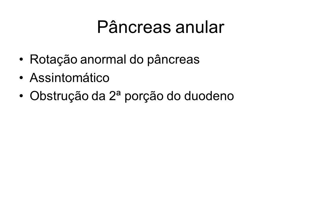 Pâncreas anular Rotação anormal do pâncreas Assintomático