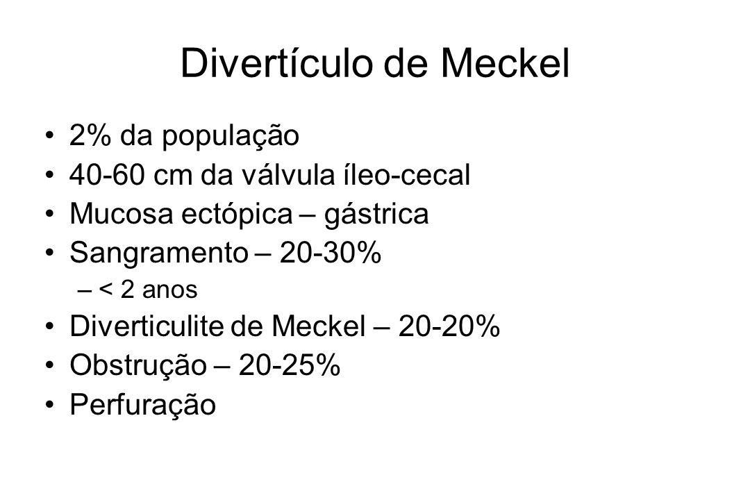 Divertículo de Meckel 2% da população 40-60 cm da válvula íleo-cecal