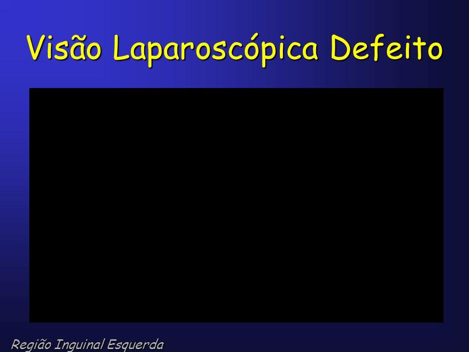 Visão Laparoscópica Defeito