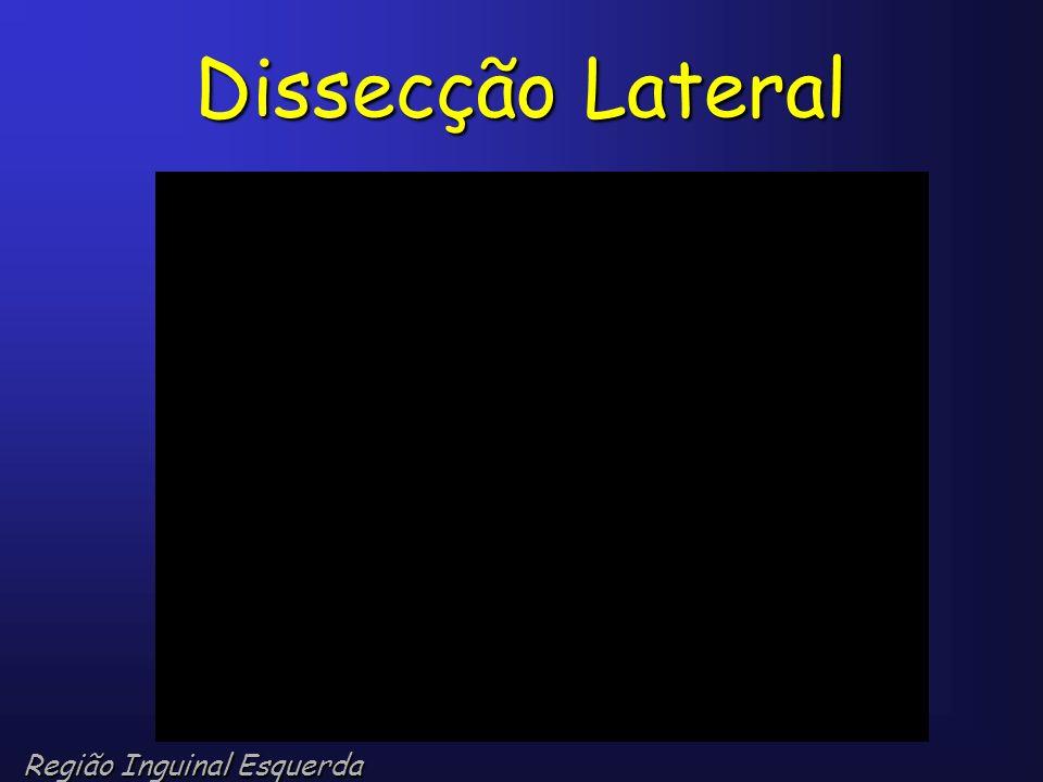 Dissecção Lateral Região Inguinal Esquerda