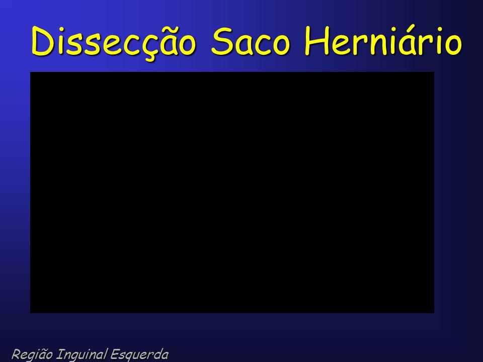 Dissecção Saco Herniário