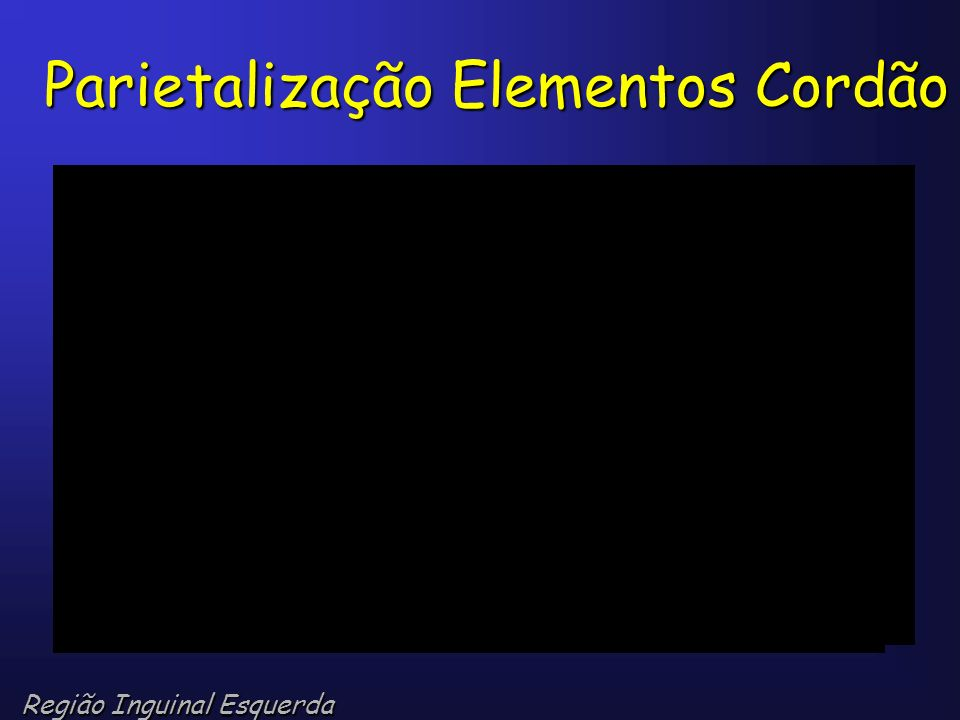 Parietalização Elementos Cordão