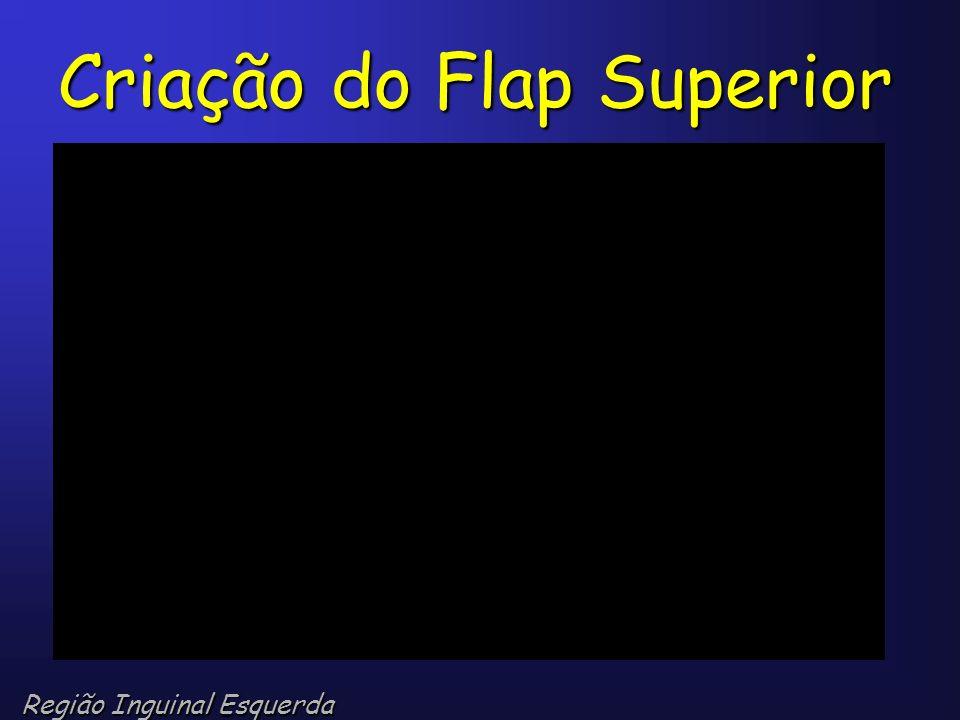 Criação do Flap Superior
