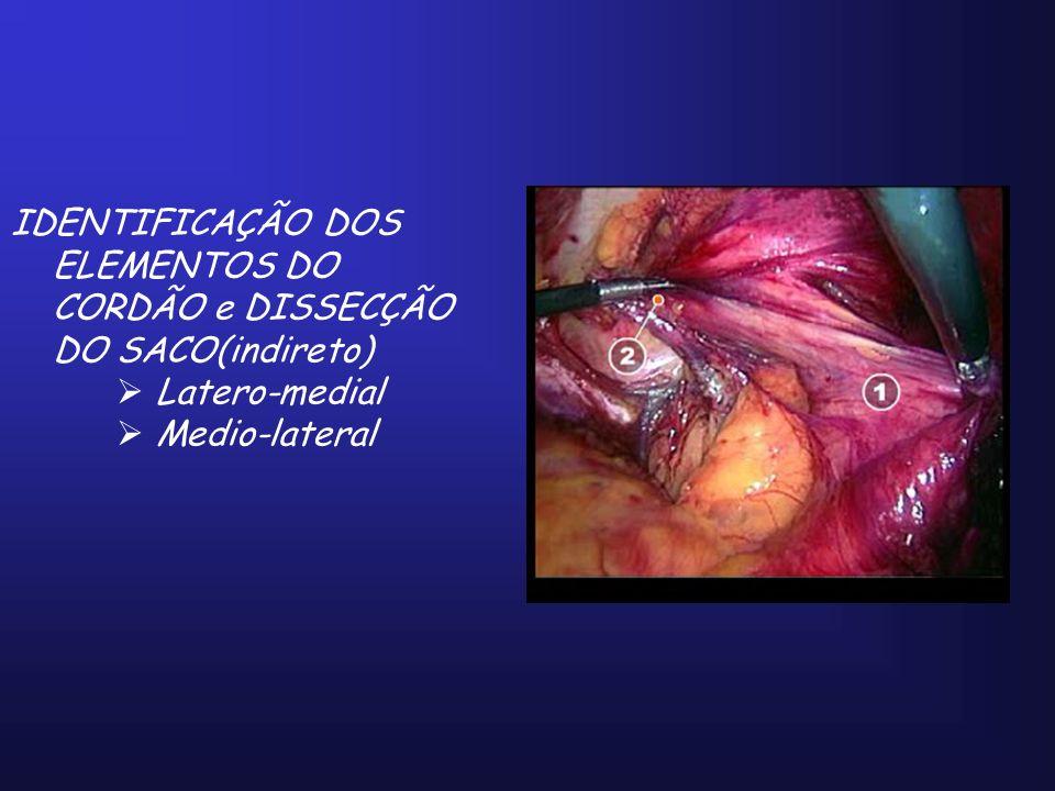 IDENTIFICAÇÃO DOS ELEMENTOS DO CORDÃO e DISSECÇÃO DO SACO(indireto) Latero-medial Medio-lateral
