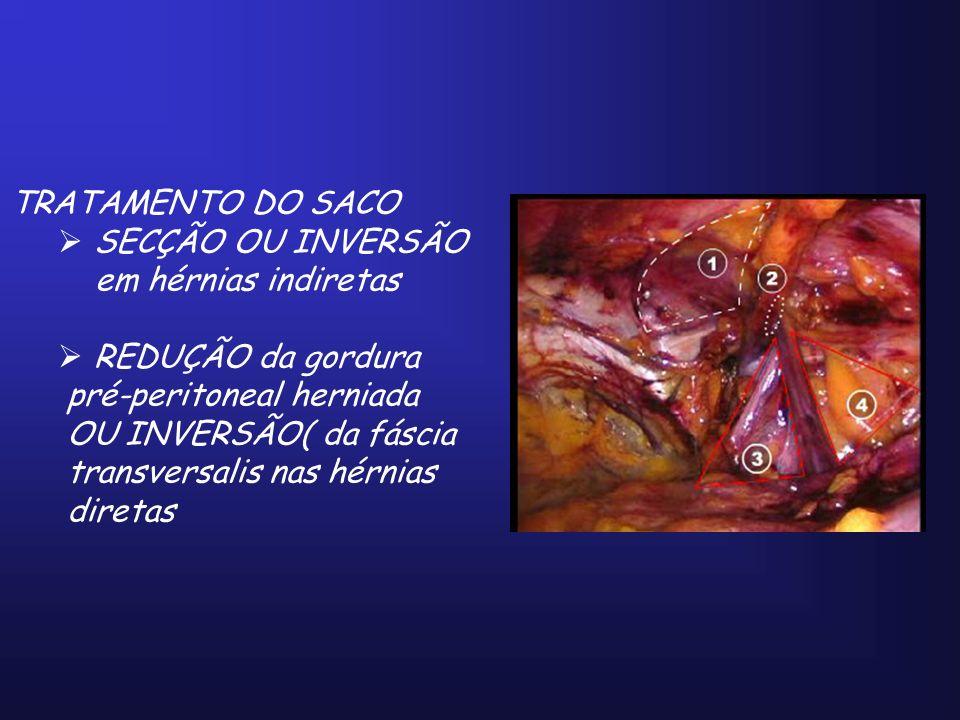 TRATAMENTO DO SACO SECÇÃO OU INVERSÃO. em hérnias indiretas. REDUÇÃO da gordura. pré-peritoneal herniada.