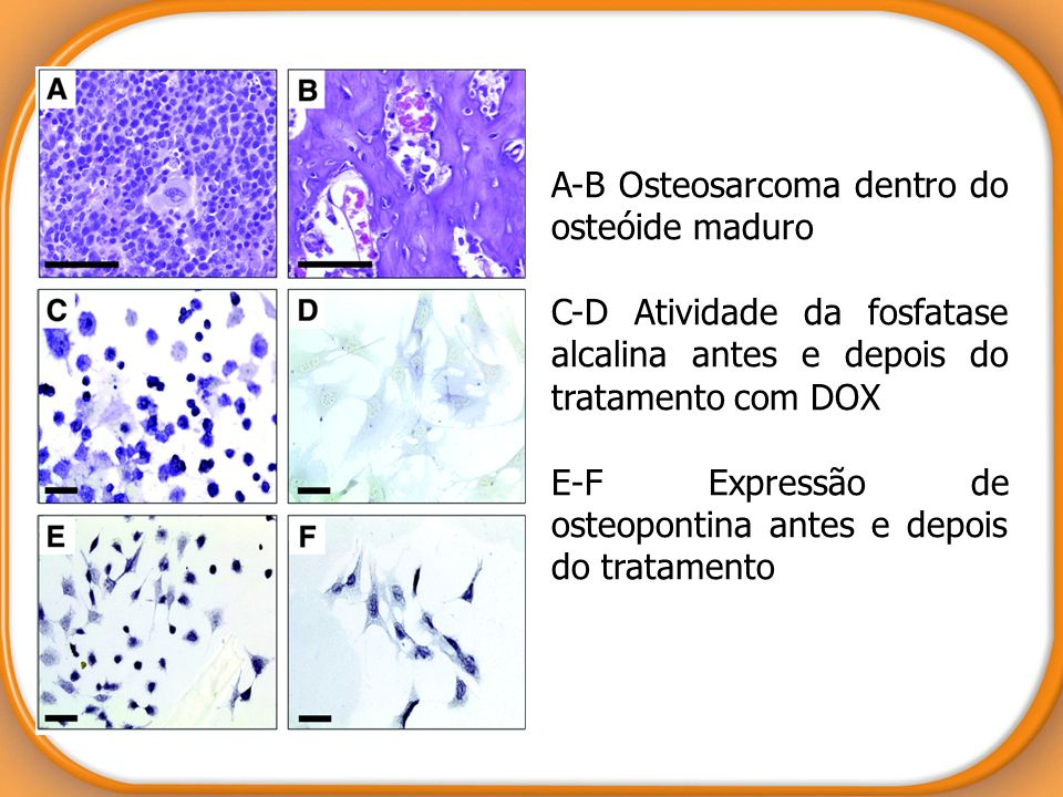 A-B Osteosarcoma dentro do osteóide maduro