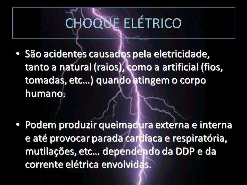 CHOQUE ELÉTRICO