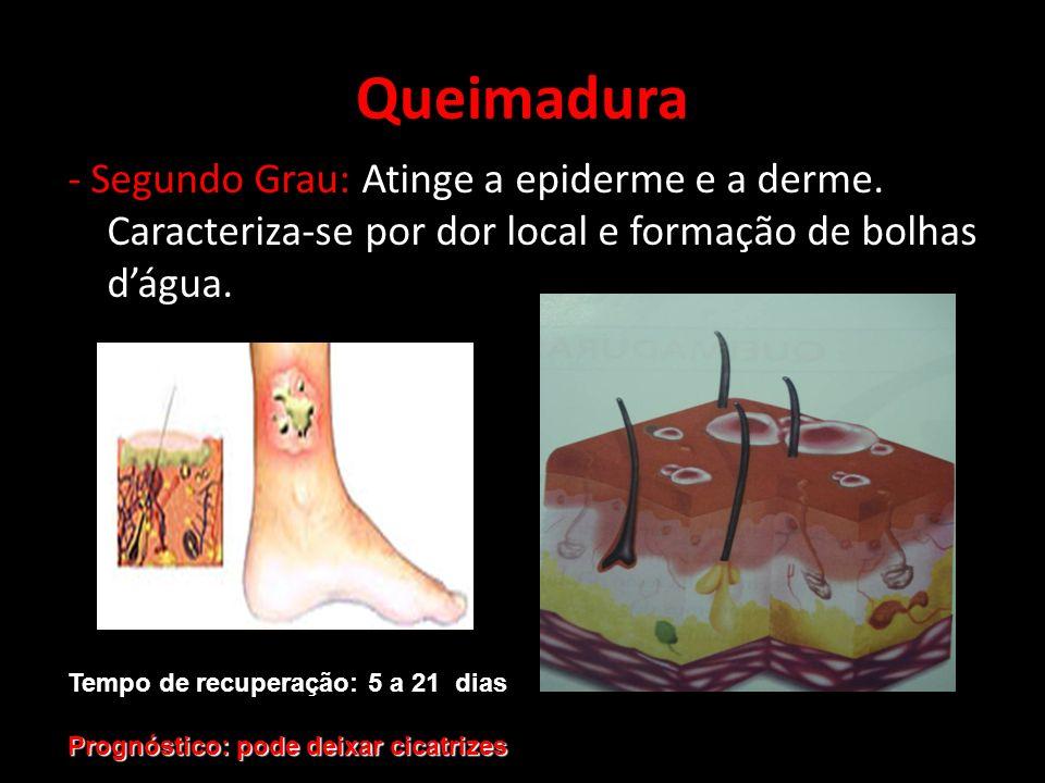 Queimadura - Segundo Grau: Atinge a epiderme e a derme. Caracteriza-se por dor local e formação de bolhas d'água.