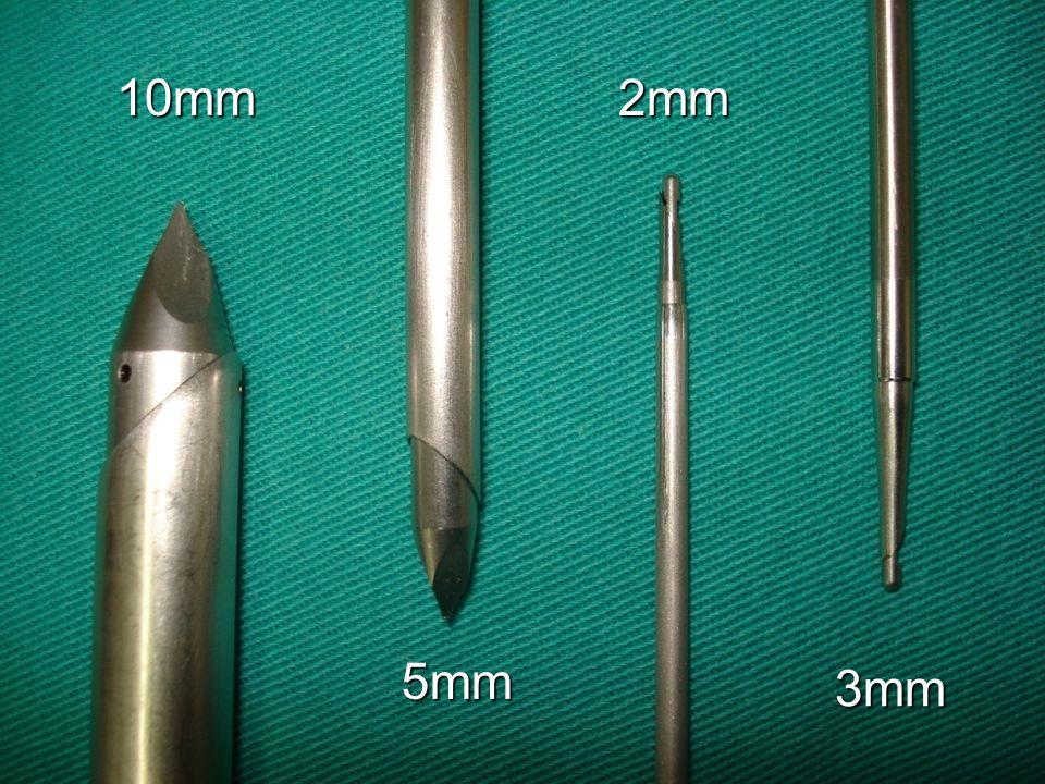 10mm 2mm 5mm 3mm Universidade de Pernambuco