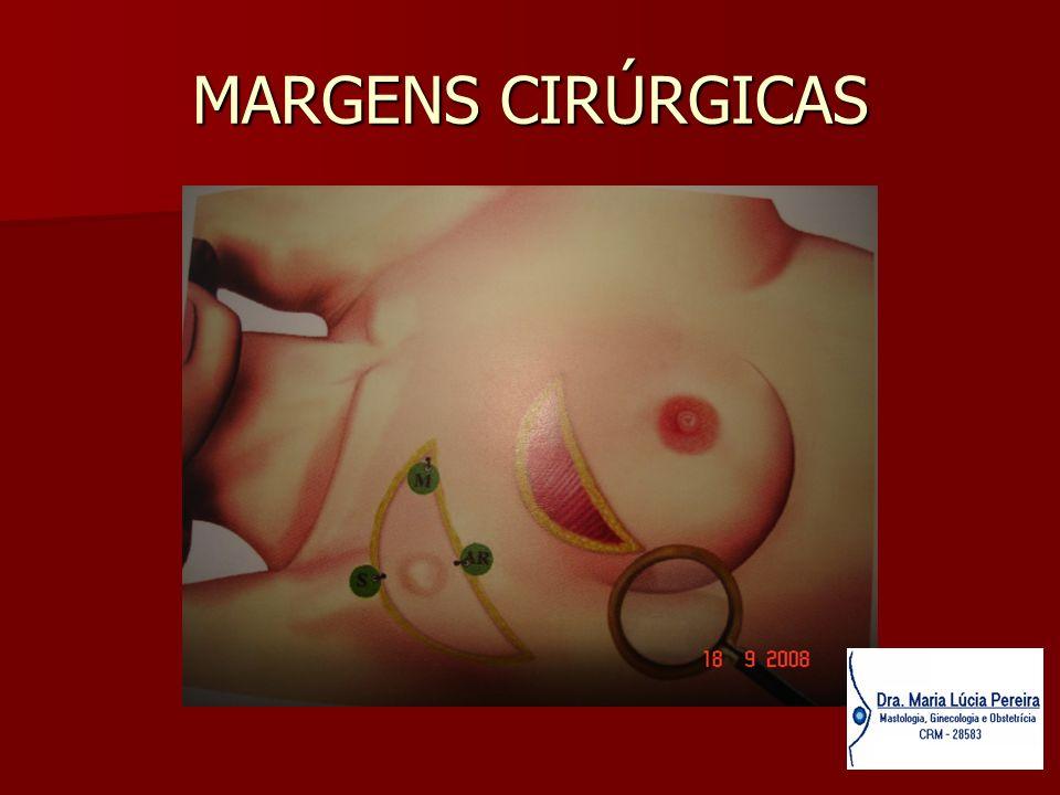 MARGENS CIRÚRGICAS