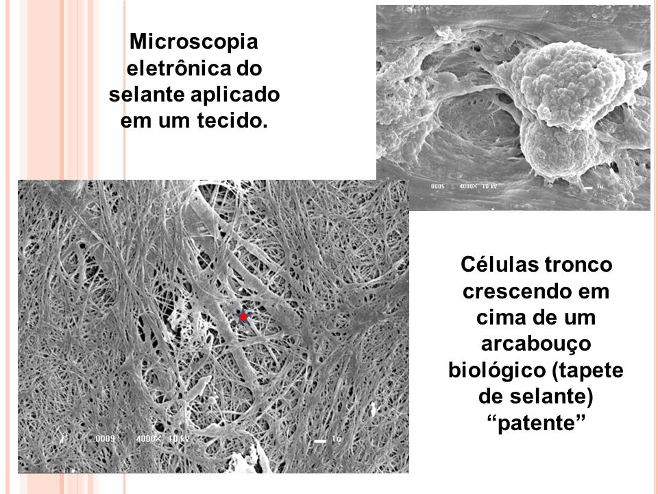 Microscopia eletrônica do selante aplicado em um tecido.