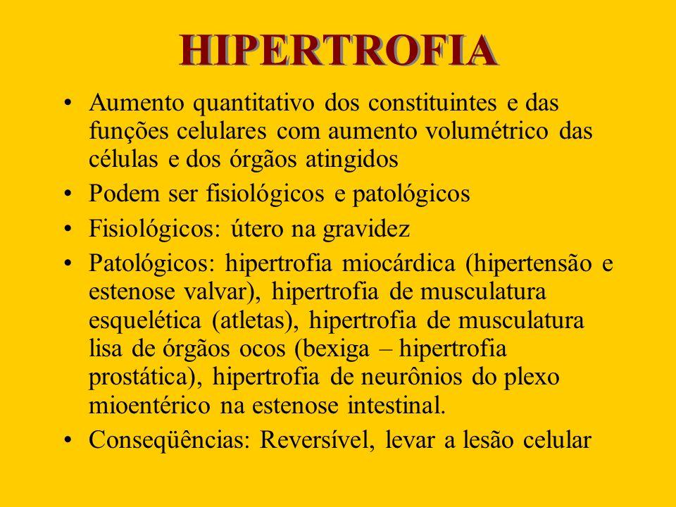 HIPERTROFIA Aumento quantitativo dos constituintes e das funções celulares com aumento volumétrico das células e dos órgãos atingidos.