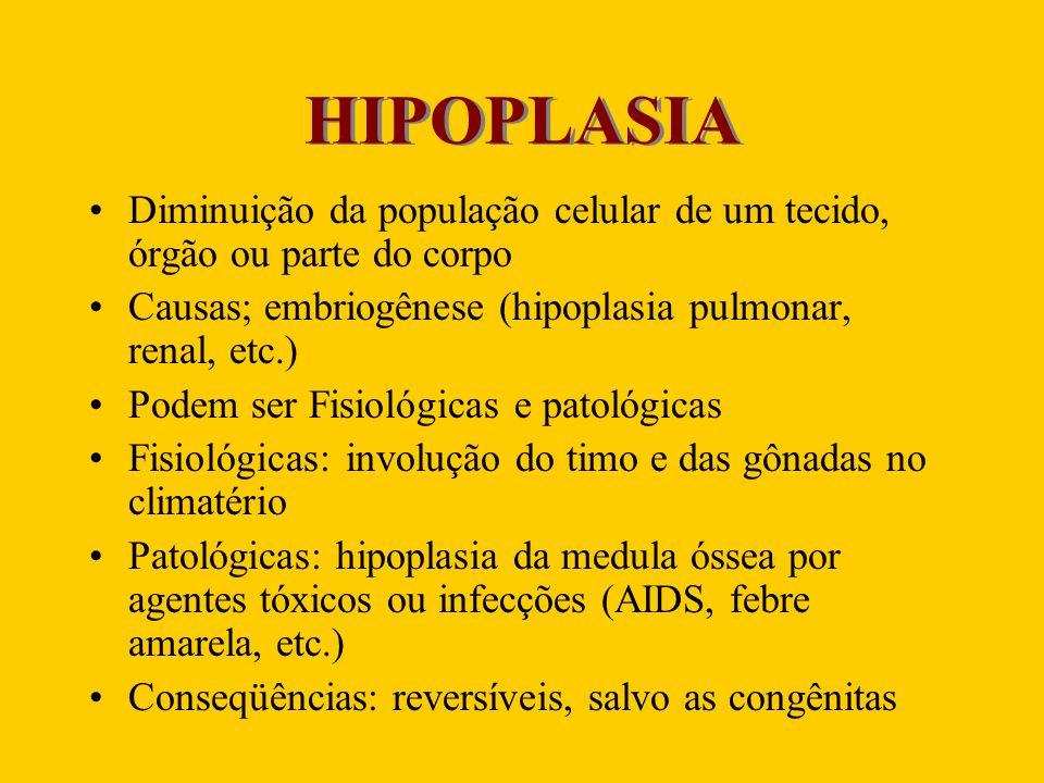 HIPOPLASIA Diminuição da população celular de um tecido, órgão ou parte do corpo. Causas; embriogênese (hipoplasia pulmonar, renal, etc.)