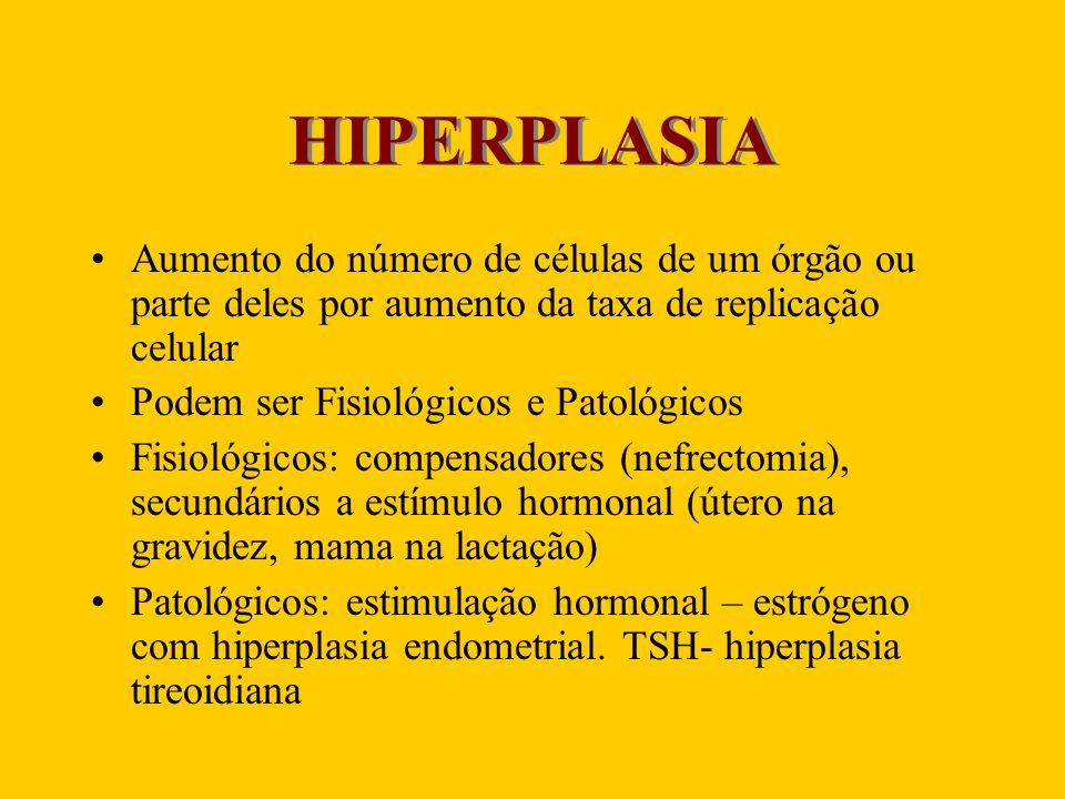 HIPERPLASIA Aumento do número de células de um órgão ou parte deles por aumento da taxa de replicação celular.