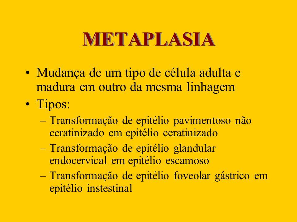 METAPLASIA Mudança de um tipo de célula adulta e madura em outro da mesma linhagem. Tipos: