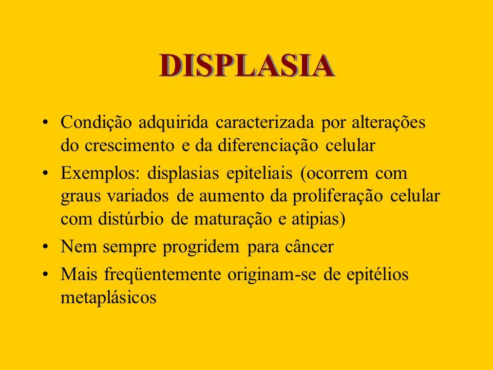 DISPLASIA Condição adquirida caracterizada por alterações do crescimento e da diferenciação celular.