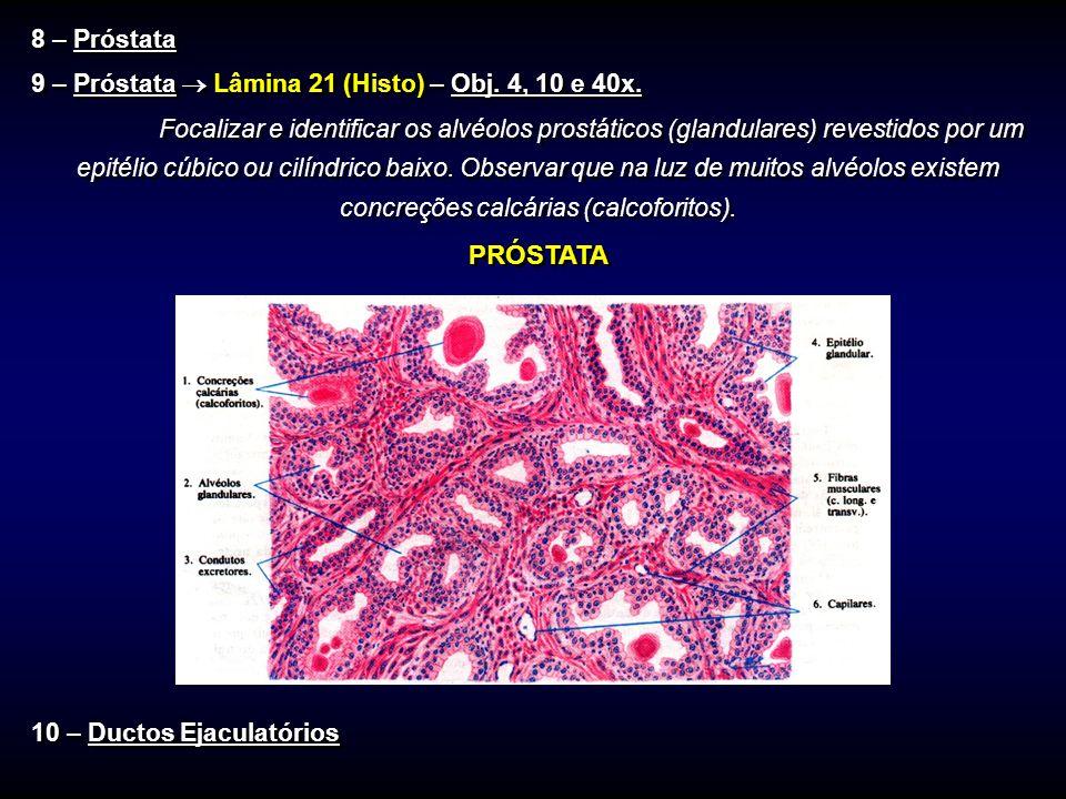 8 – Próstata 9 – Próstata  Lâmina 21 (Histo) – Obj. 4, 10 e 40x.