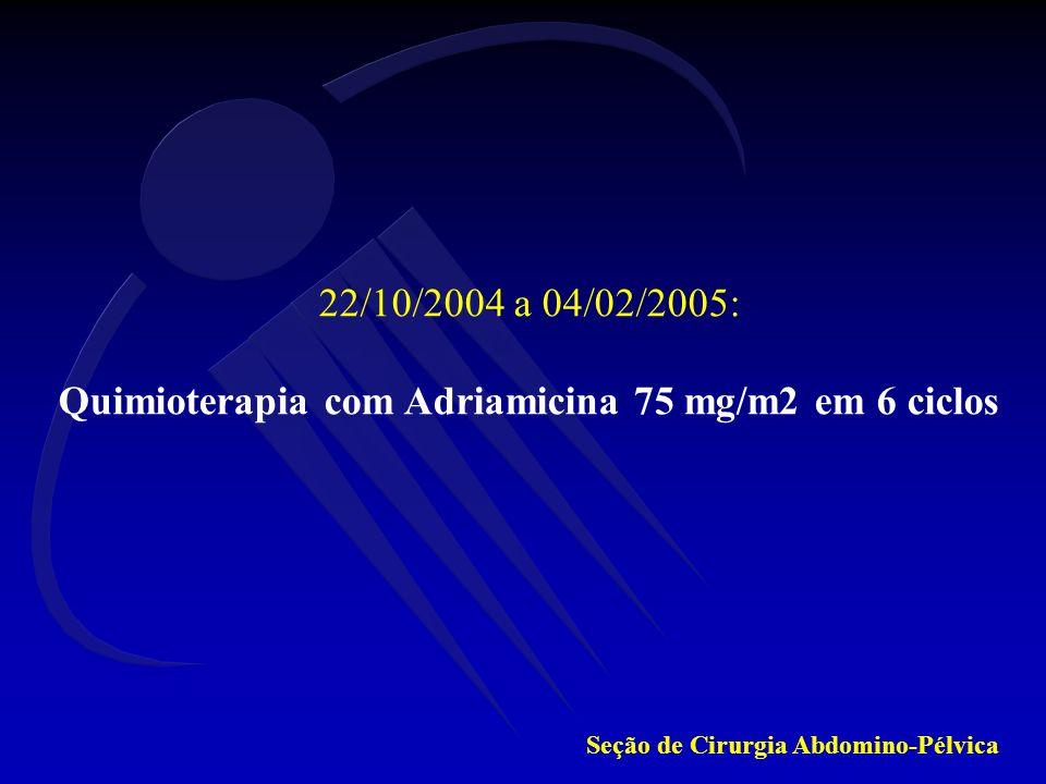 Quimioterapia com Adriamicina 75 mg/m2 em 6 ciclos