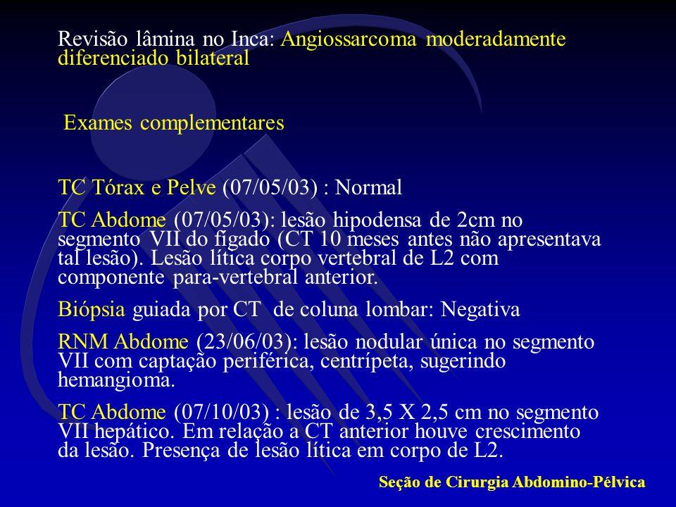 Exames complementares TC Tórax e Pelve (07/05/03) : Normal