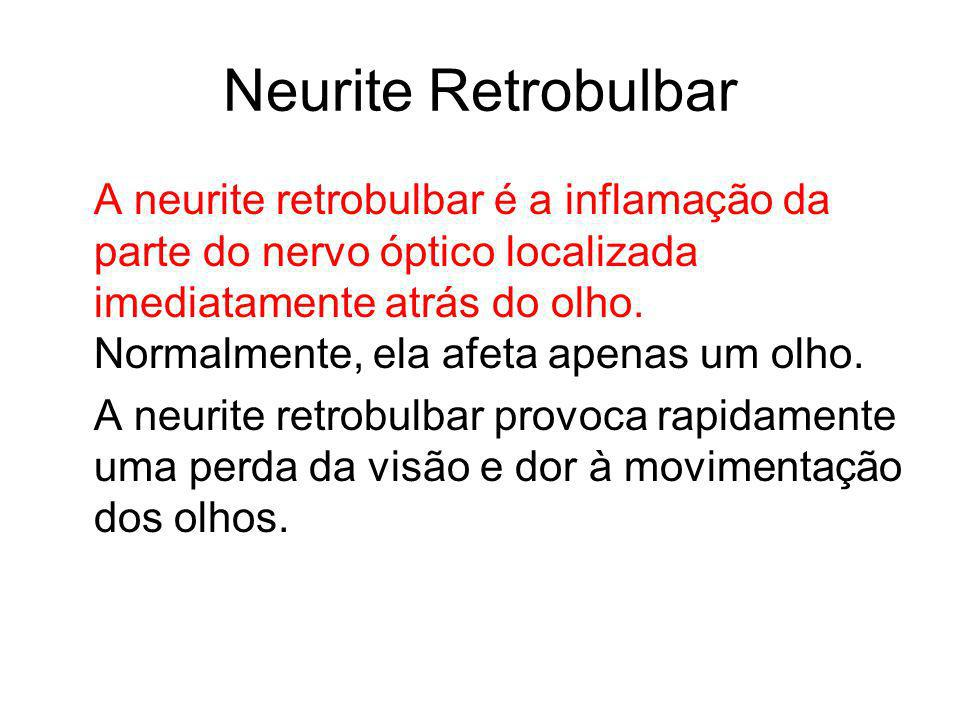 Neurite Retrobulbar
