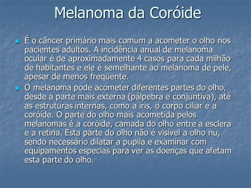 Melanoma da Coróide