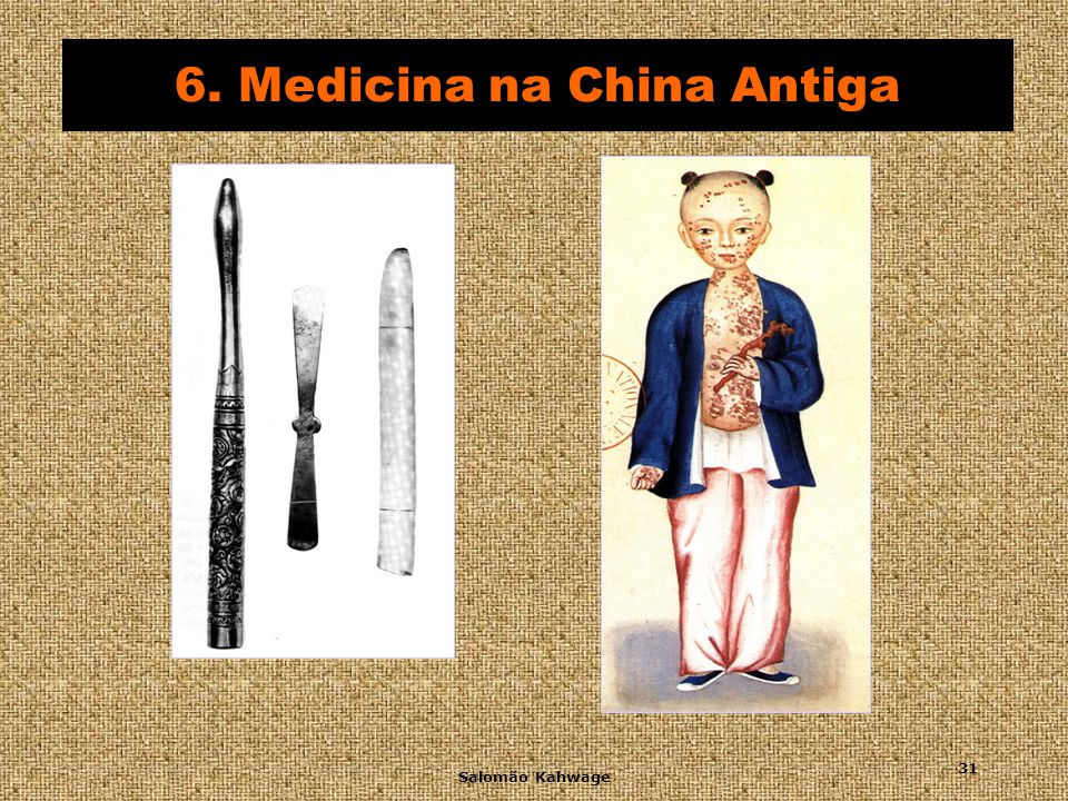 6. Medicina na China Antiga