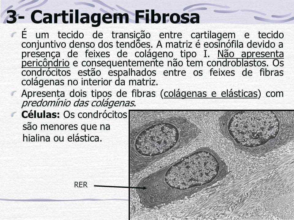3- Cartilagem Fibrosa