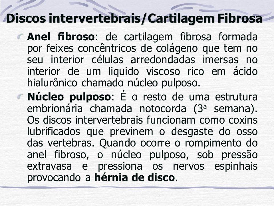 Discos intervertebrais/Cartilagem Fibrosa
