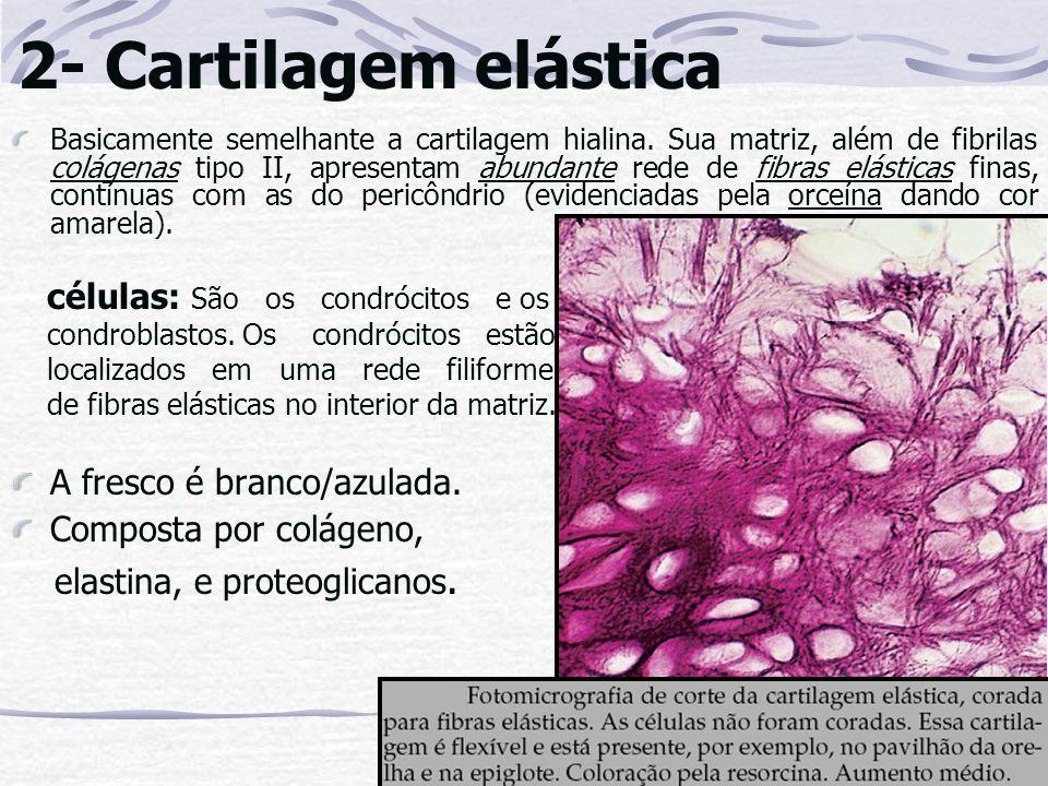 2- Cartilagem elástica A fresco é branco/azulada.