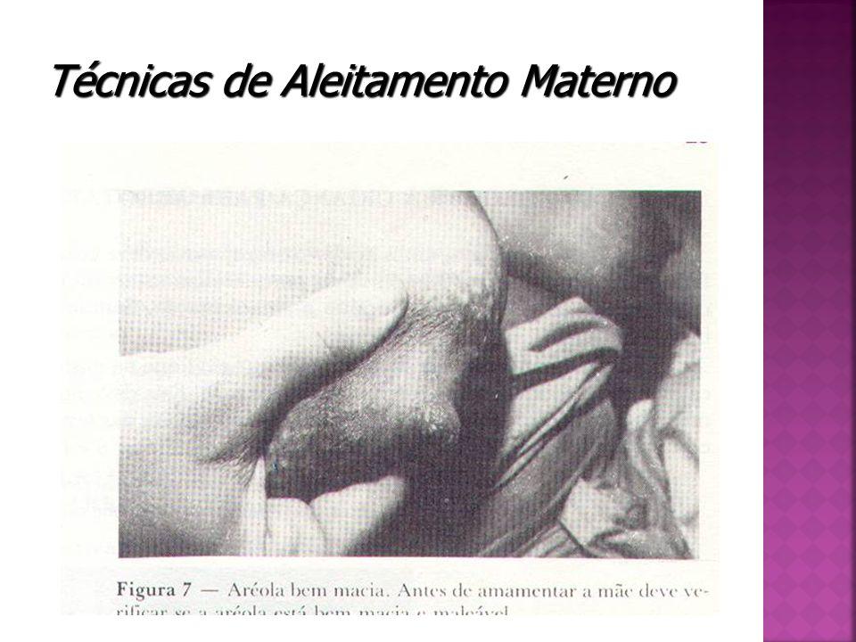 Técnicas de Aleitamento Materno
