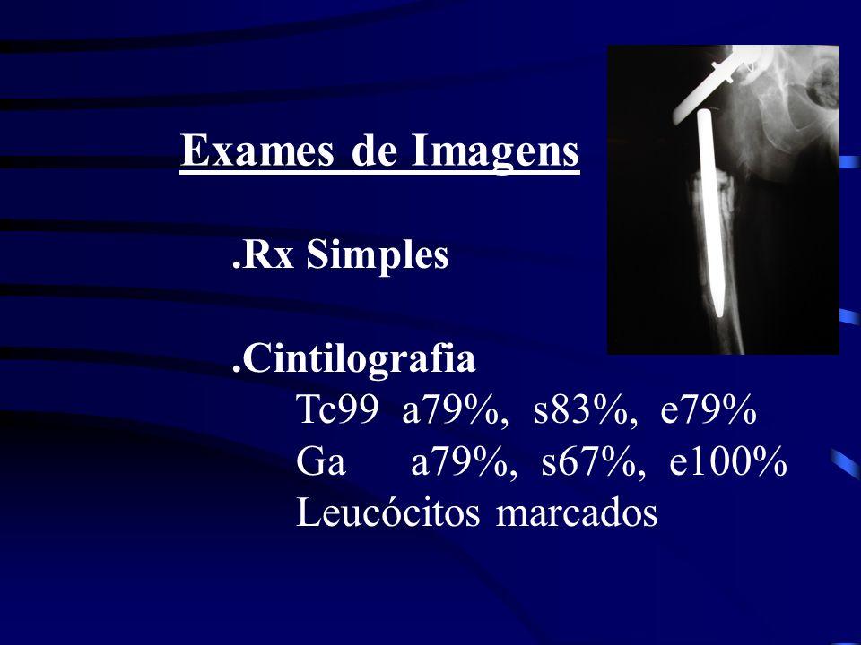 Exames de Imagens .Rx Simples .Cintilografia Tc99 a79%, s83%, e79%