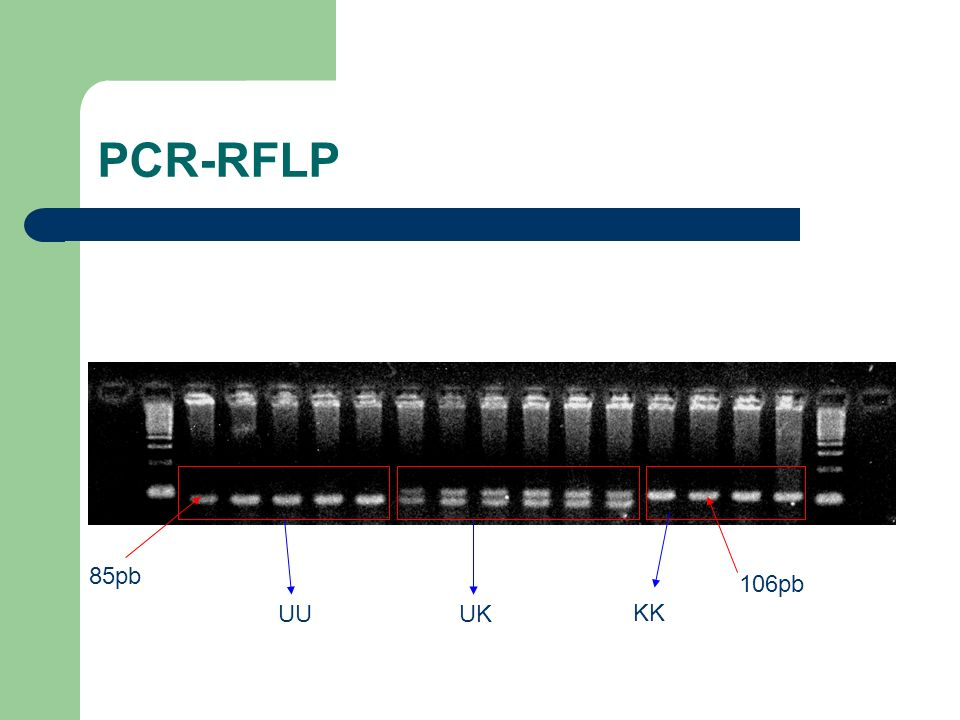 PCR-RFLP 85pb 106pb UU UK KK
