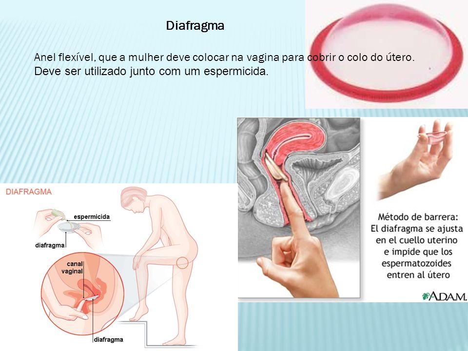 Diafragma Anel flexível, que a mulher deve colocar na vagina para cobrir o colo do útero.