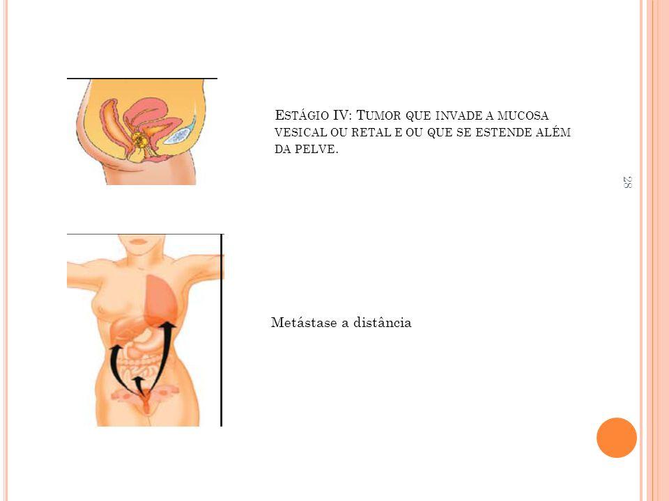 Estágio IV: Tumor que invade a mucosa vesical ou retal e ou que se estende além da pelve.