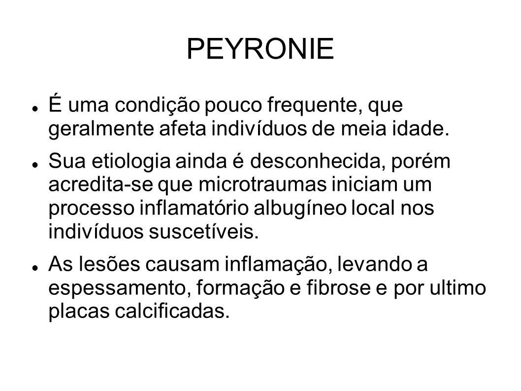 PEYRONIE É uma condição pouco frequente, que geralmente afeta indivíduos de meia idade.