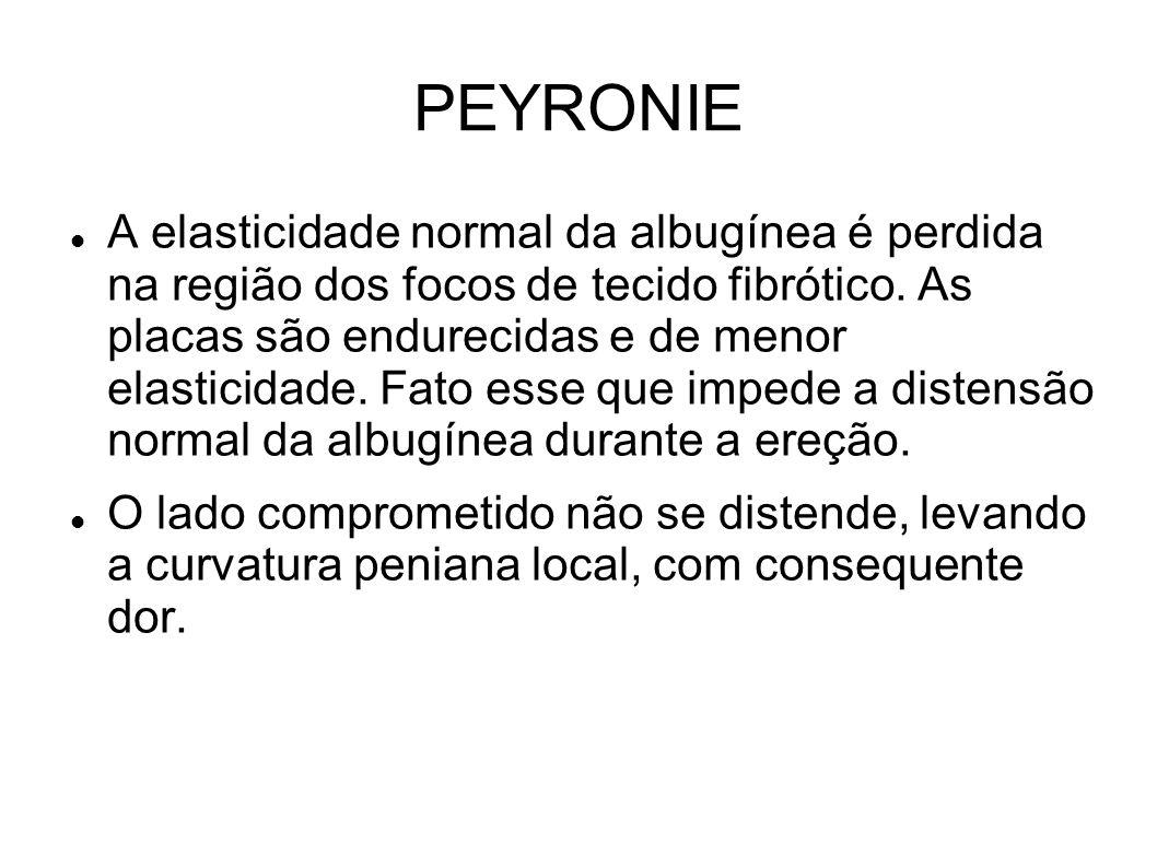 PEYRONIE