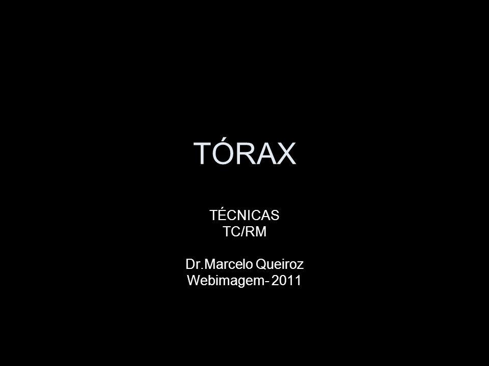 TÉCNICAS TC/RM Dr.Marcelo Queiroz Webimagem- 2011