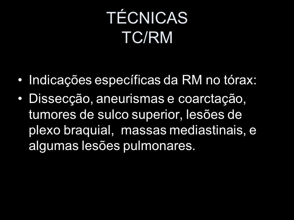 TÉCNICAS TC/RM Indicações específicas da RM no tórax: