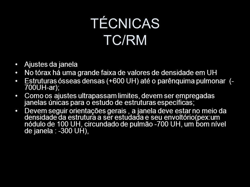TÉCNICAS TC/RM Ajustes da janela
