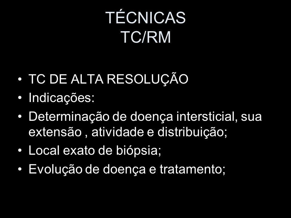 TÉCNICAS TC/RM TC DE ALTA RESOLUÇÃO Indicações: