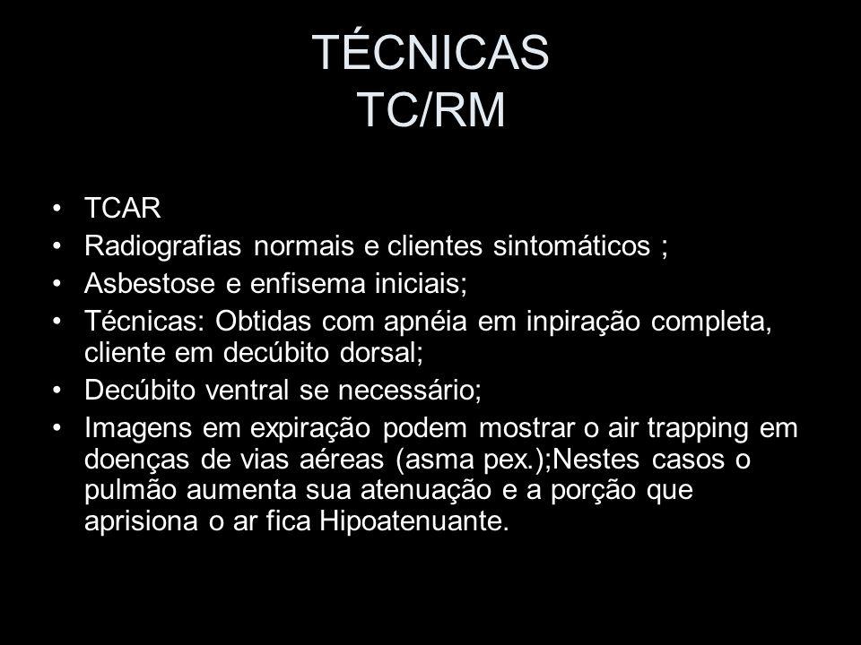 TÉCNICAS TC/RM TCAR Radiografias normais e clientes sintomáticos ;