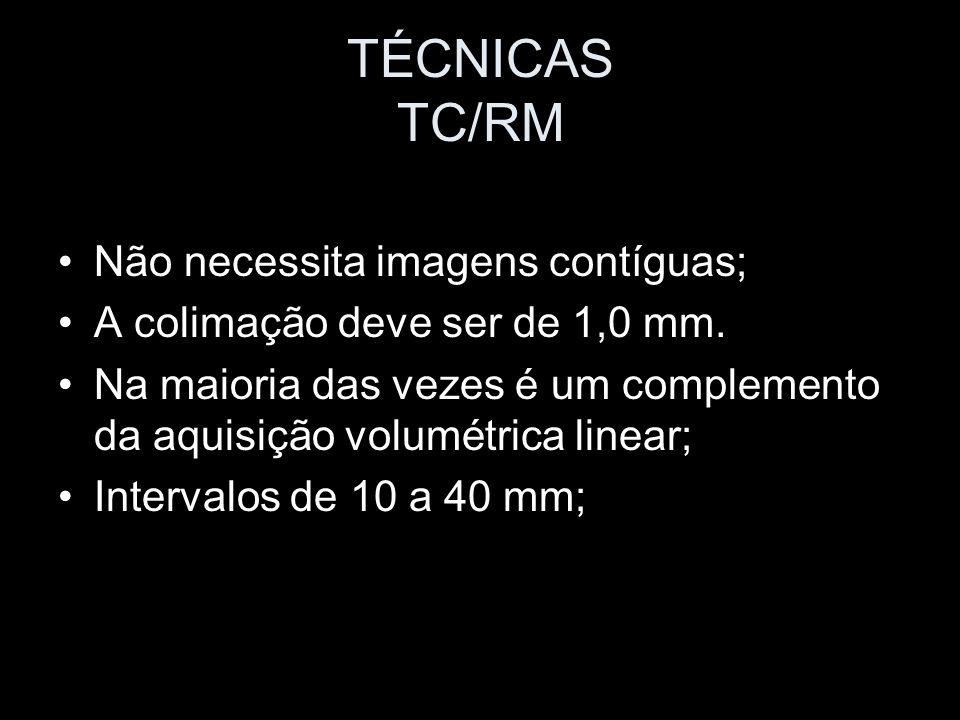 TÉCNICAS TC/RM Não necessita imagens contíguas;