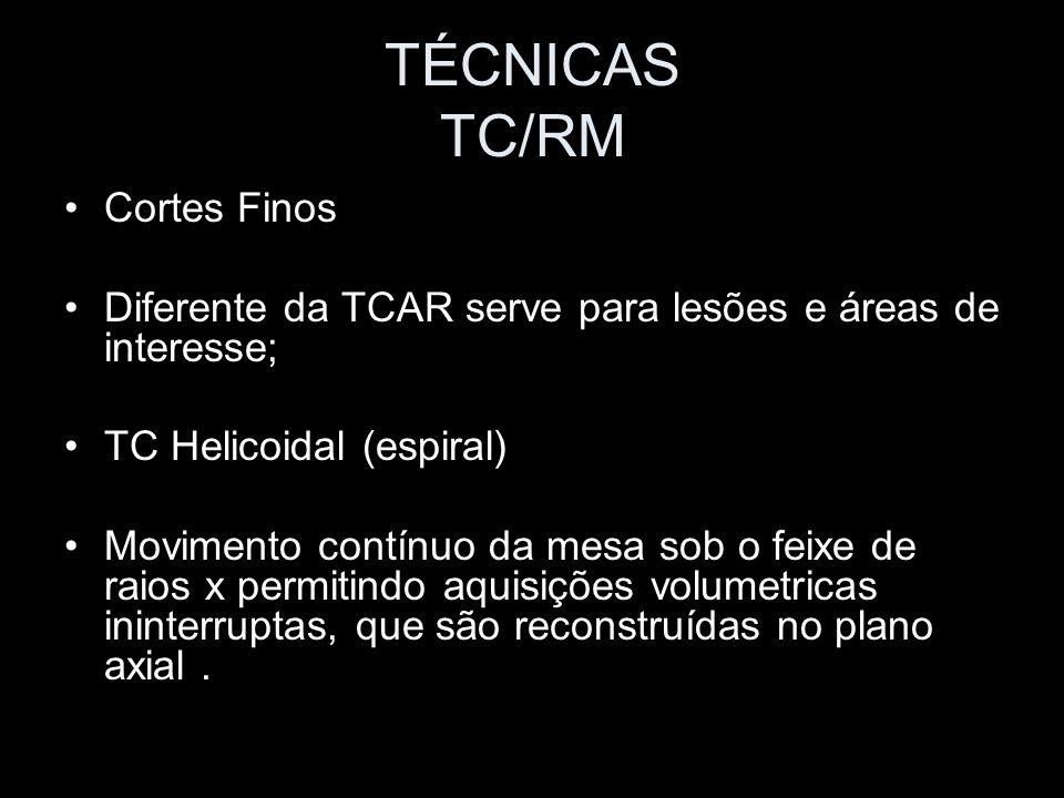 TÉCNICAS TC/RM Cortes Finos