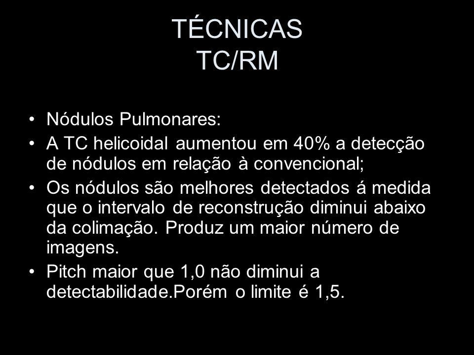 TÉCNICAS TC/RM Nódulos Pulmonares: