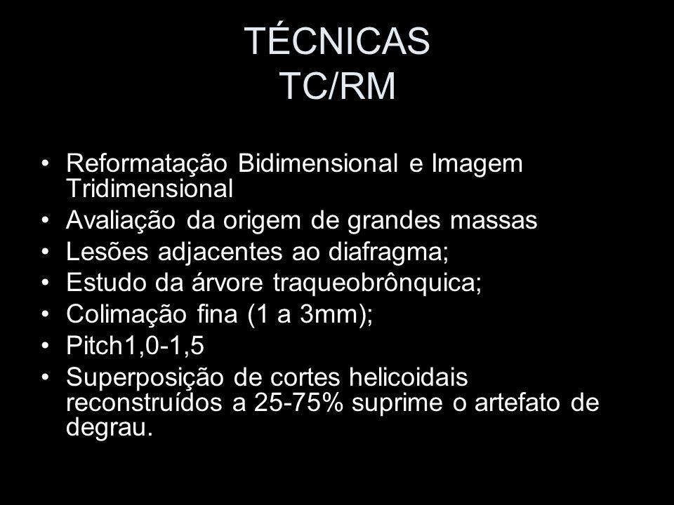 TÉCNICAS TC/RM Reformatação Bidimensional e Imagem Tridimensional