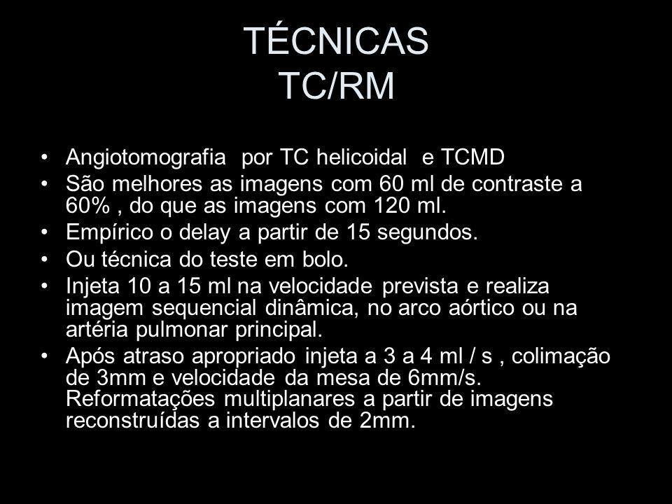 TÉCNICAS TC/RM Angiotomografia por TC helicoidal e TCMD