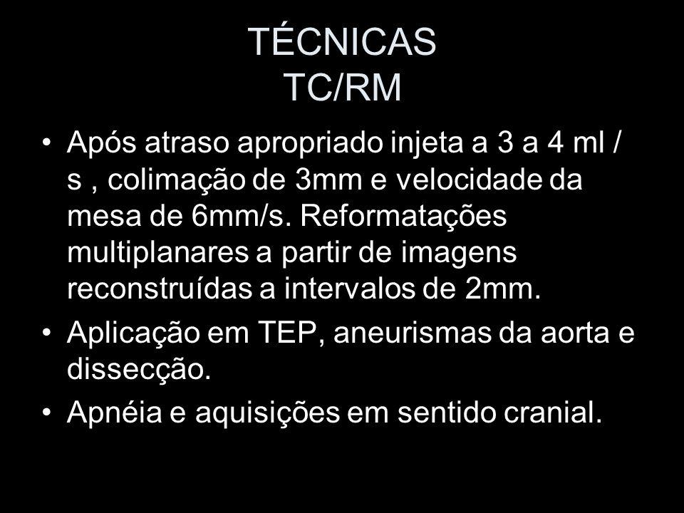 TÉCNICAS TC/RM